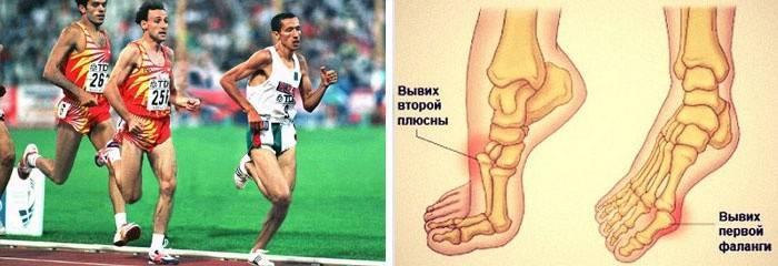 Болить великий палець на нозі в суглобі, кісточка, болі близько нігтя: причини, що робити і як лікувати