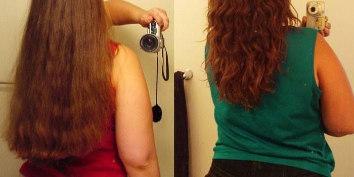 Нікотинова кислота для волосся: користь вітаміну для зростання