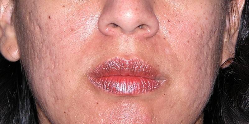 Догляд за жирною шкірою особи - огляд масок, скрабів, кремів, лосьйонів і пілінгів з інструкцією та відгуками