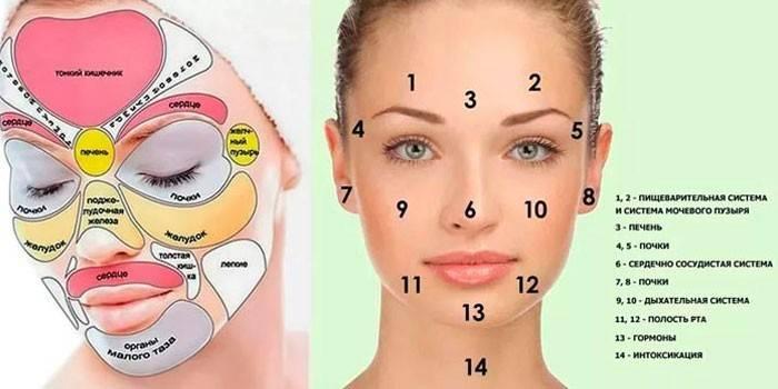 9 способів прибрати прищі на носі аптечними і народними засобами