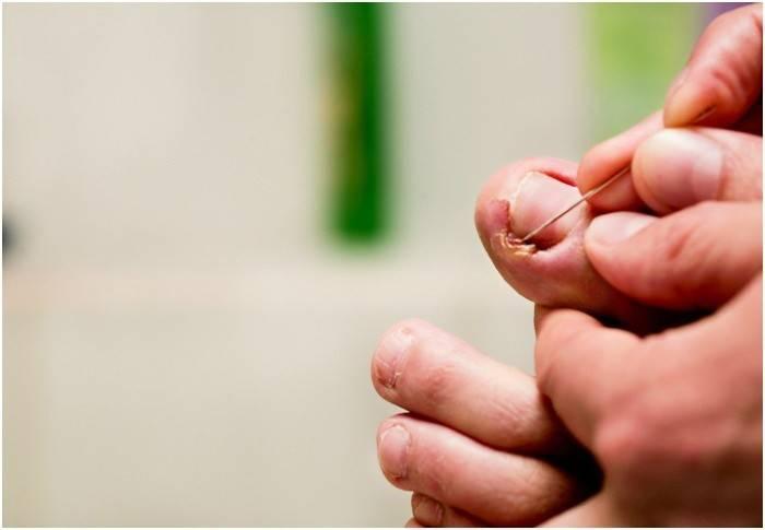 Врослий ніготь на нозі: як лікувати народними засобами в домашніх умовах