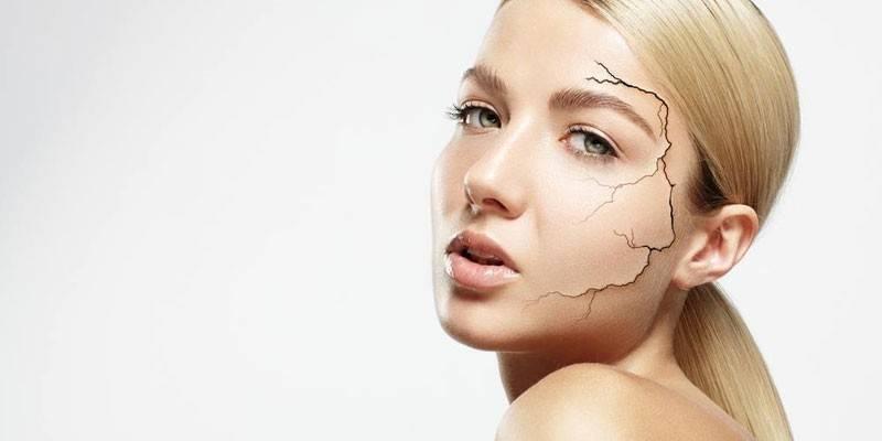 Суха шкіра обличчя - як усунути в домашніх умовах за допомогою масок, кремів, народних засобів