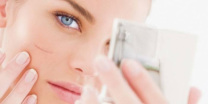 Нитки для підтяжки обличчя - види, способи закріплення, етапи операції, реабілітація, відгуки з фото до і після