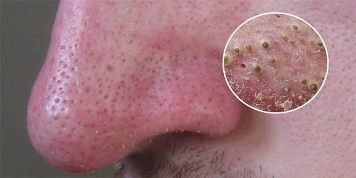 Чорні крапки на носі, щоках і підборідді - причини появи, як очистити шкіру і прибрати назавжди