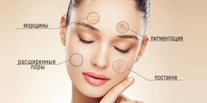 Пілінг обличчя в домашніх умовах глибокий і поверхневий - підготовка, нанесення і час впливу