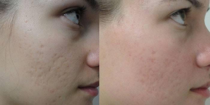 Підтяжка обличчя - кругова або без операцій з відгуками та цінами, фейсліфтінг в домашніх умовах