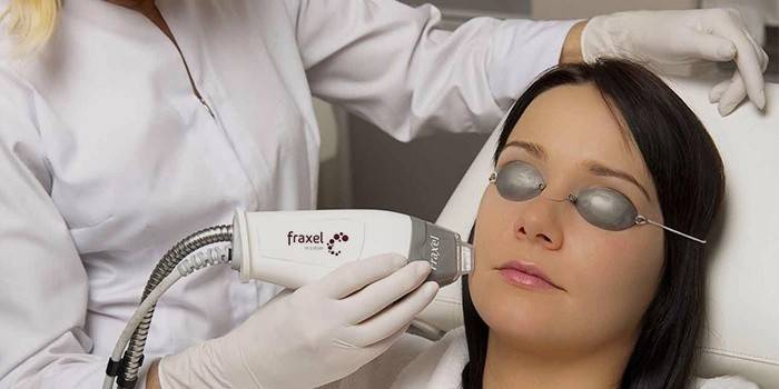Лазерне омолодження обличчя: плюси і мінуси шліфування шкіри