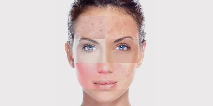 Як визначити тип шкіри обличчя і правильно провести тест в домашніх умовах