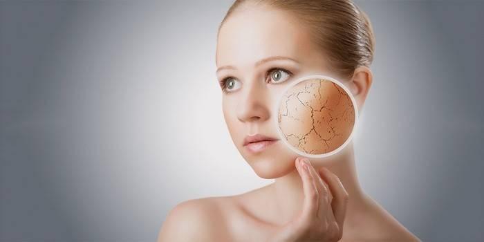 Лущиться шкіра на обличчі: чому вона дуже суха і що робити