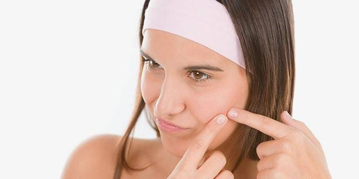 Можна видавлювати прищі на обличчі і як правильно виконувати процедуру