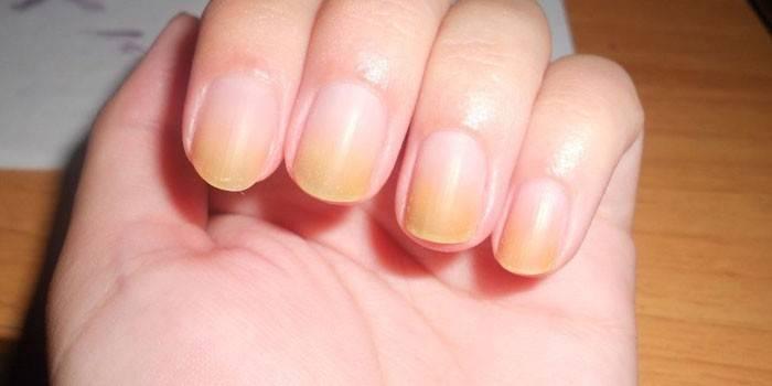 Як відбілити нігті і позбутися від жовтизни на руках або ногах - список найбільш ефективних препаратів