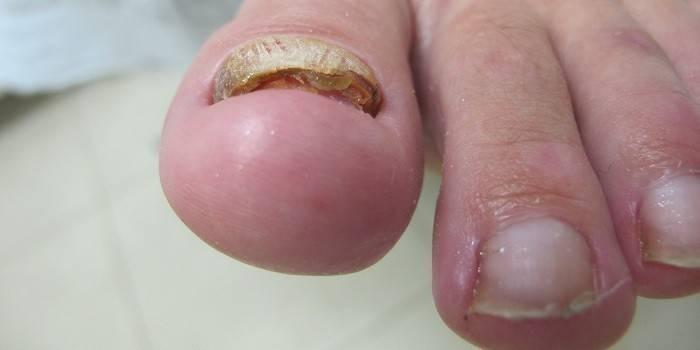 Протезування нігтів на ногах - як проходить процедура: особливості, етапи і ціна