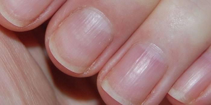 Причини деформації нігтів і методи лікування