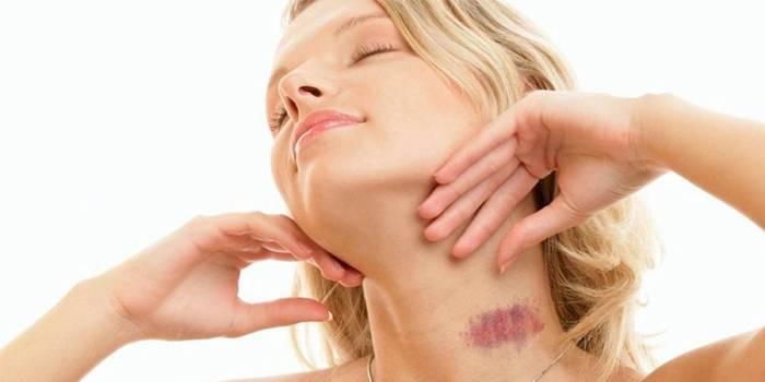 Як прибрати засос на шиї або губі