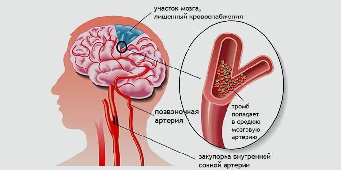 Хронічна ішемія головного мозку: симптоми, ступеня і лікування