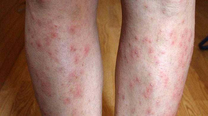 Червоні точки на ногах - причини появи висипу і лікування, фото