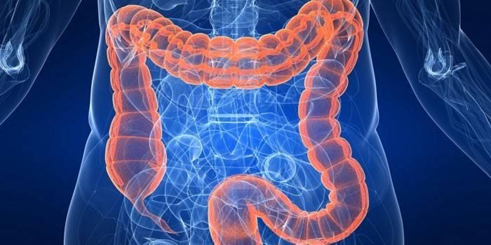 Пневматоз кишечника - ознаки і симптоми, лікування і дієта для дітей або дорослих