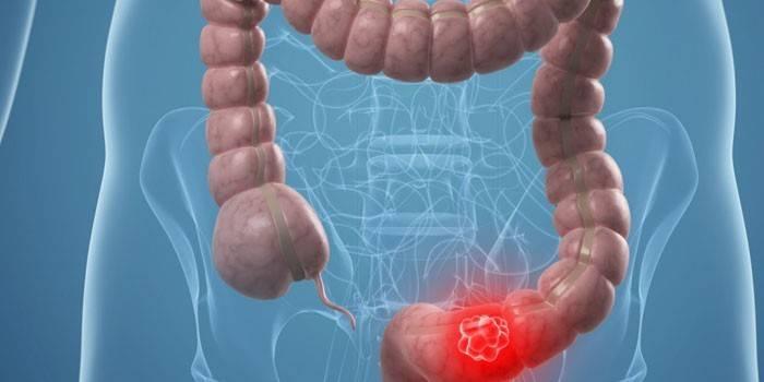 Сигмовидна кишка: як лікувати захворювання відділу кишечника