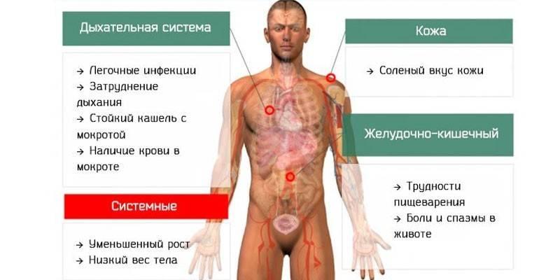Муковісцидоз - симптоми хвороби