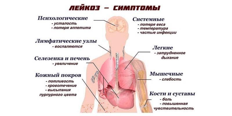 Лейкоз крові – симптоми у дорослих: як проявляється захворювання