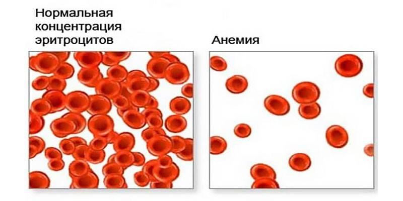 Гіперхромні анемія - чому виникає і як виявляється, медикаментозна терапія і прогноз