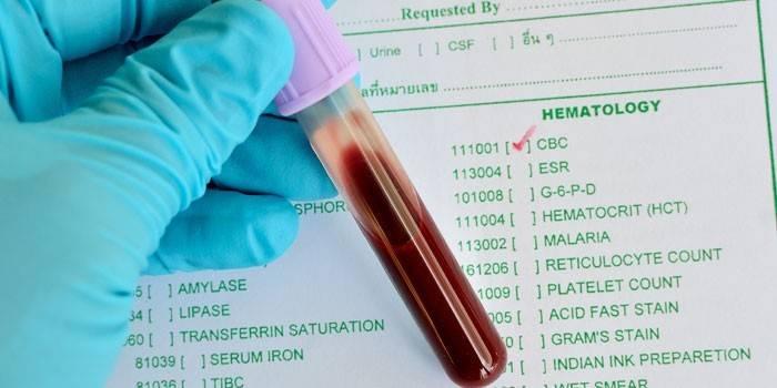 Гематокрит - що це таке, виявлення і визначення ступеня анемії у дітей і дорослих