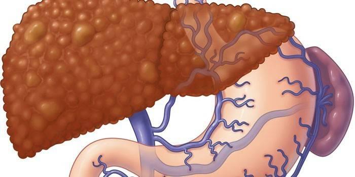 Портальна гіпертензія - причини, симптоми і лікування захворювання