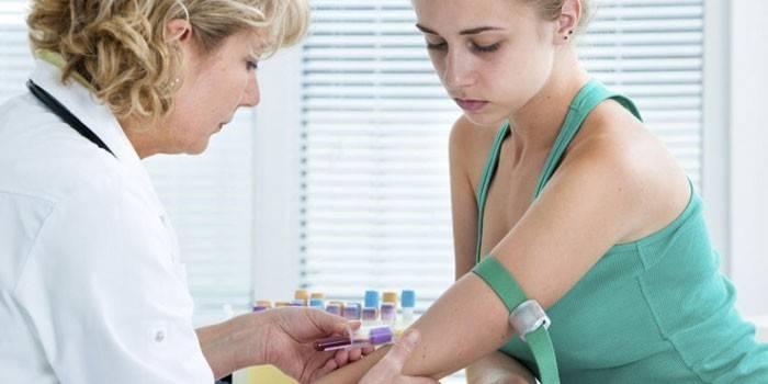 Холестерин - норма у жінок за віком при аналізі крові