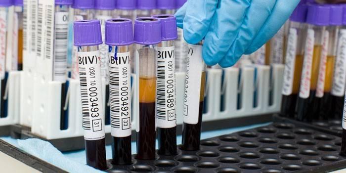 Білірубін у крові - причини високого рівня в загальному аналізі у дітей та дорослих і норми таблиця