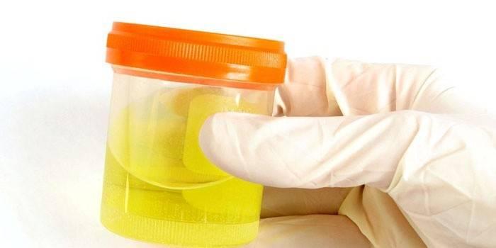 ПЛР аналіз - що це таке: метод діагностики і розшифровка