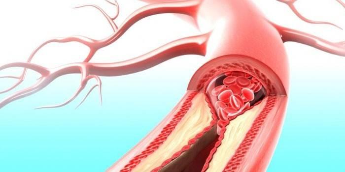 Гемоглобін - норма за віком