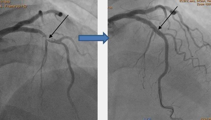 Стентування судин серця: тривалість життя після коронарної операції