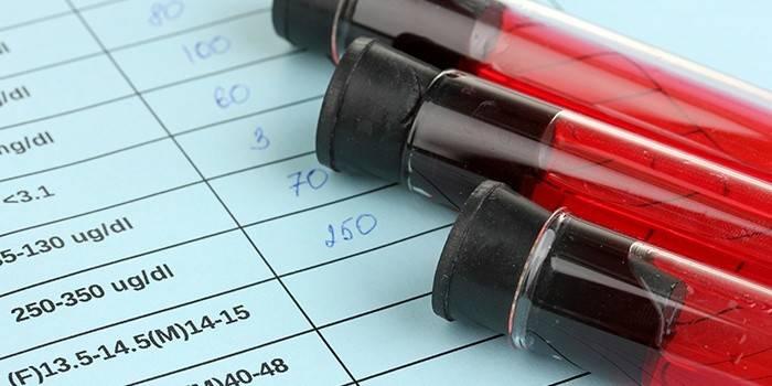 Чим небезпечний високий гемоглобін у жінок, чоловіків та новонароджених дітей