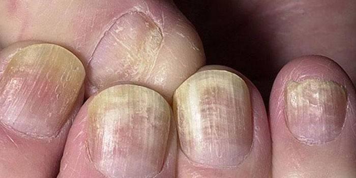 Чим лікувати грибок нігтів на руках у домашніх умовах - ліки від оніхомікозу, відгуки про лікування інфекції
