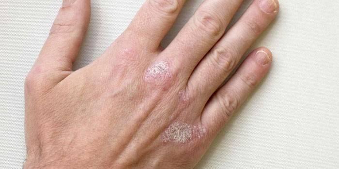 Лишай на руці - як виглядають різновиди хвороби з фото, прояви на початкових стадіях і чим лікувати