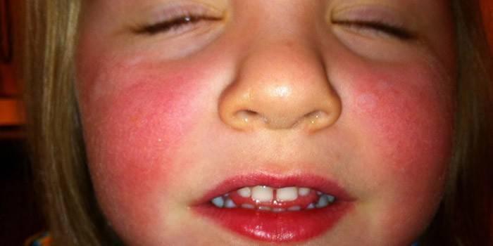 Червоні щоки у дитини і дорослого - симптом гіперемії, аутоімунних хвороб, гіпертонії і алергії