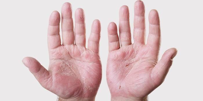 Облазить шкіра на долонях у дитини або дорослого - від чого сохне епідерміс, що робити і чим мазати