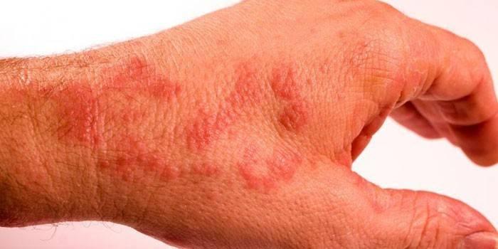 Червоні точки на руках: причини і лікування висипу
