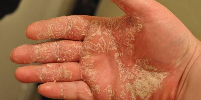 Мокнуча екзема: як лікувати захворювання в домашніх умовах