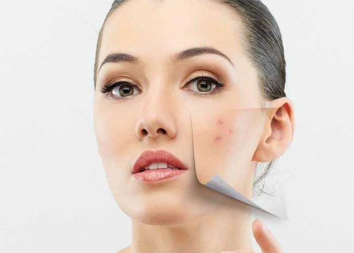 Підшкірні прищі на обличчі і підборідді шишки: як позбутися