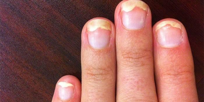 Оніхолізисом - причини і лікування нігтьової пластини