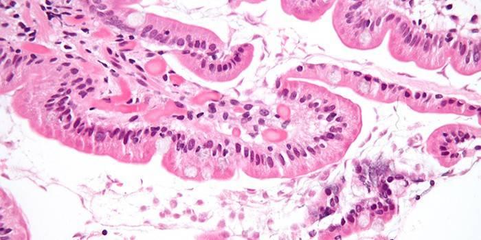Протозойні інфекції - діагностика захворювань та симптоми, лікування препаратами антипротозойными