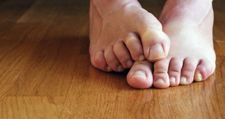 Як виглядає грибок на ногах - симптоми захворювання, фото