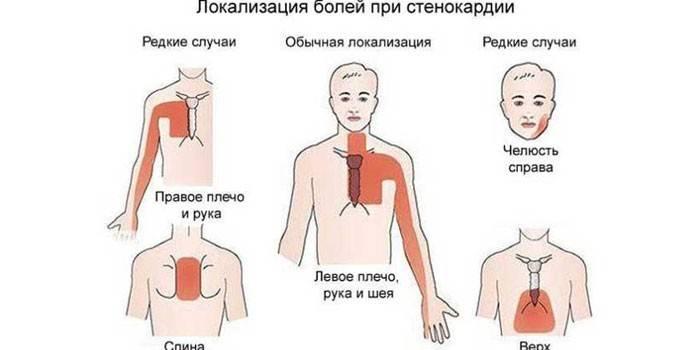 Класифікація стенокардії - симптоми і ознаки патології
