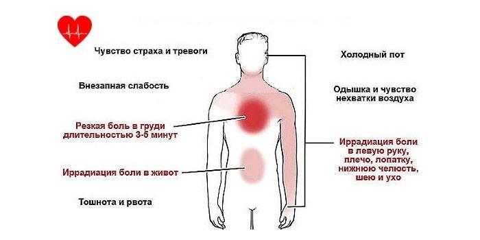Наслідки стенокардії - симптоми і способи лікування, профілактика