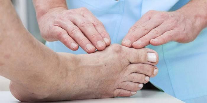 Лікування гіпертонії при подагрі: таблетки та сечогінні засоби при захворюваннях