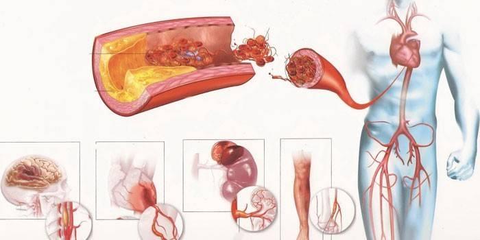 Атеросклероз аорти, серця, черевної або грудної - причини і ознаки, симптоми і лікування