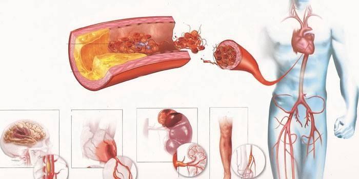 Атеросклероз судин - причини і ознаки захворювання, діагностика і лікування, методи профілактики