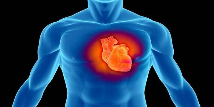 Серцева астма - симптоми, лікування та невідкладна допомога при приступі
