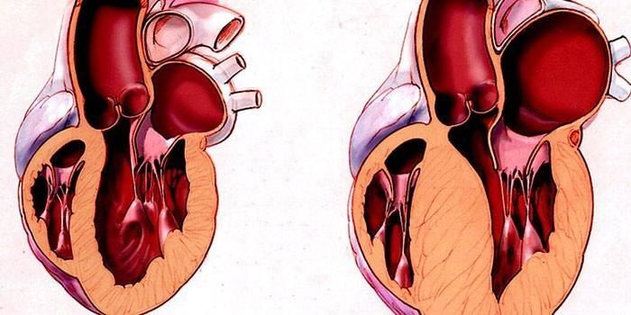Гіпертрофічна кардіоміопатія - причини і ознаки, симптоми і лікування